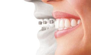 他の矯正歯科治療との違い