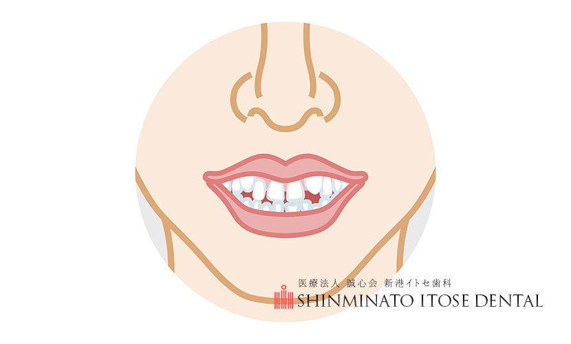 歯並びがガタガタ