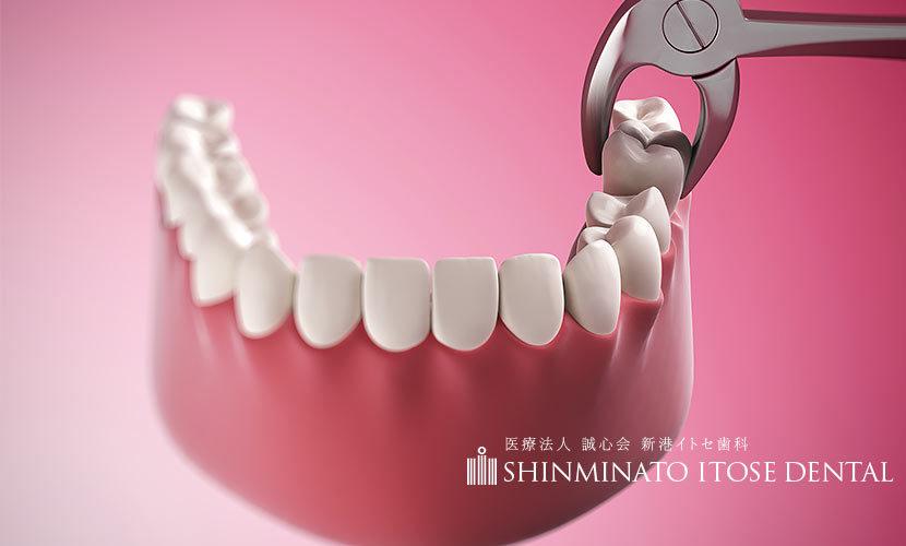抜歯する矯正歯科治療