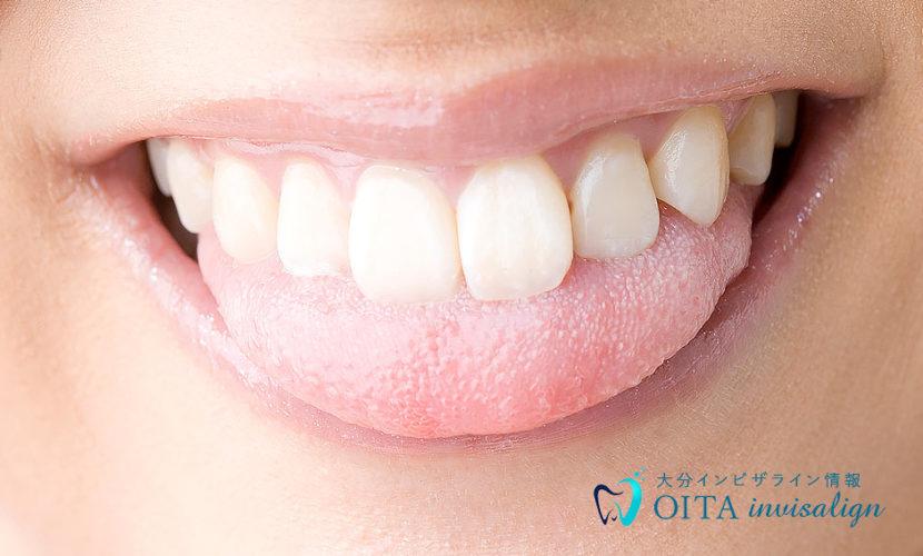 舌癖と歯並び